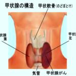 【重要】統計学の専門家が、複数のデータを元に「福島の甲状腺がん多発は検査のし過ぎではない」と主張!