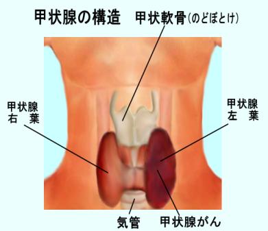 【は?】福島の小児甲状腺がん検査、規模の縮小を検討!「がん検診は受診者に不利益が生じる」