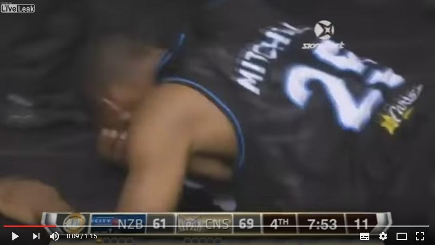 【衝撃】ニュージーランドのバスケの試合中に眼球が飛び出す事故!ミッチェル選手「眼球が顔の横にあるのに見えていたのは変だった」