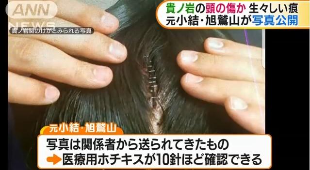 【マジか】貴ノ岩と見られる頭部のケガの写真が物議!医療用ホッチキスで10針も!元小結の旭鷲山が公開!